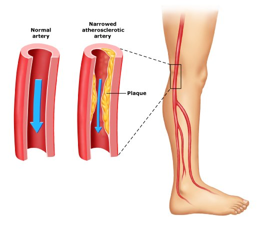 Peripheral Artery Disease (PAD) Treatment