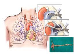 PTE – Pulmonary Thromboendarterectomy